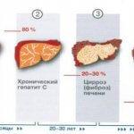 Питание при больной печени и поджелудочной: рекомендации и советы