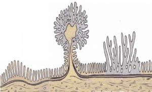 Ворсинчатое строение аденомы