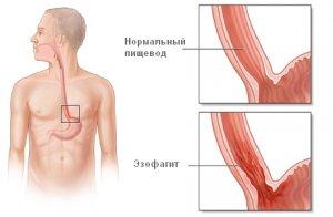Разновидности болезней пищевода: характерные симптомы и лечение