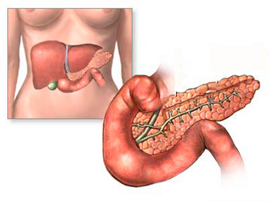 Диффузные изменения поджелудочной железы: диета и особенности ее применения