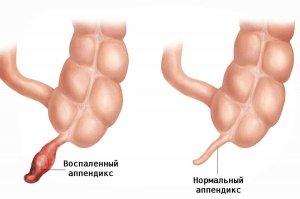 Гнойный аппендицит