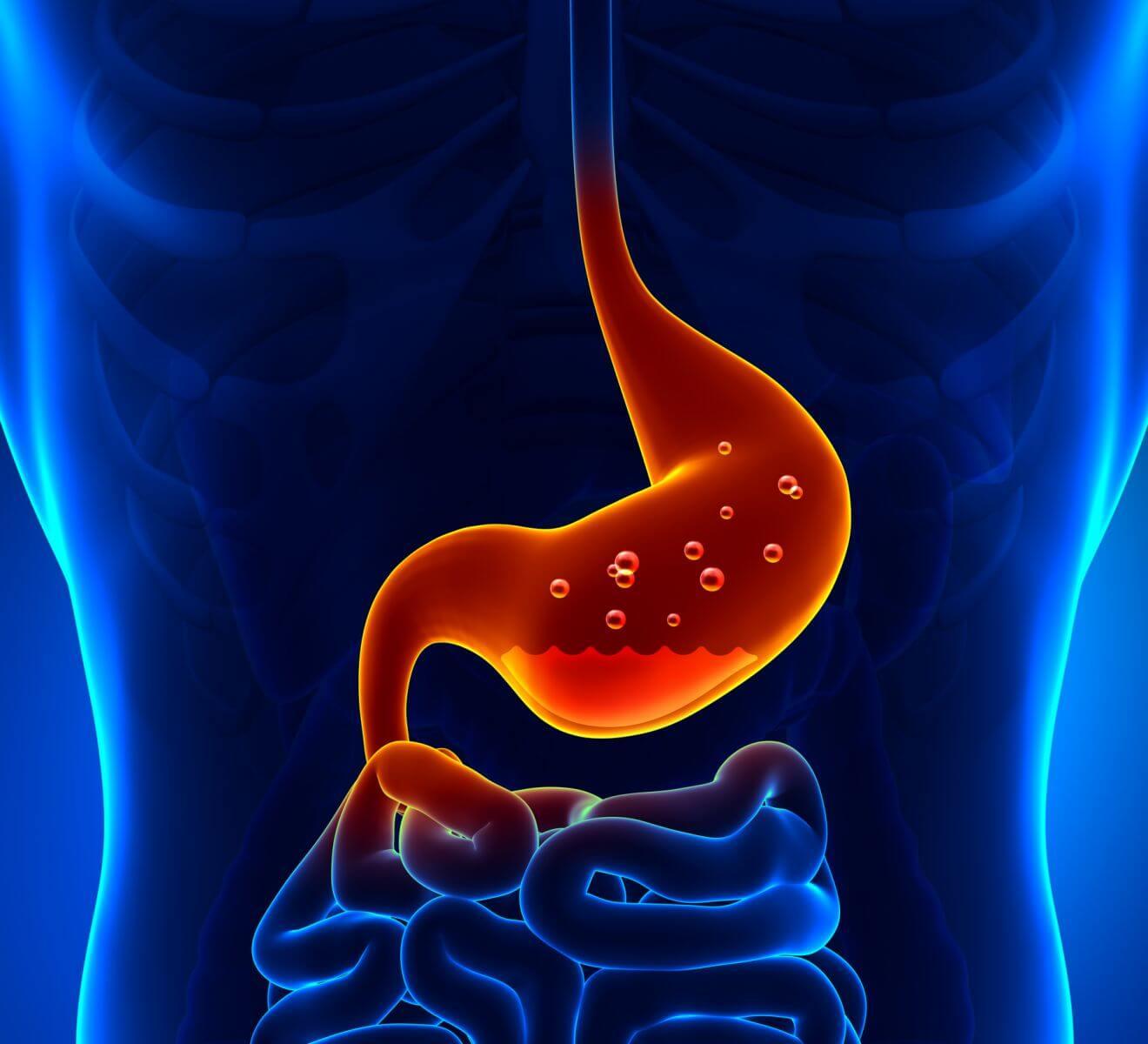 Гастрит симптомы и лечение хронического гастрита у взрослых.