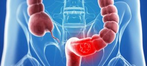 Симптомы онкологии кишечника, разновидности, диагностика