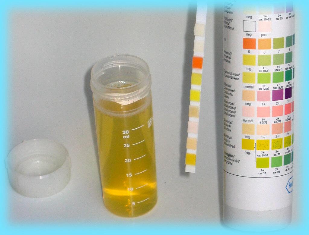 Как сдавать анализ мочи на сахар, подробный обзор данной диагностики