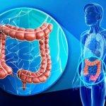 Рак прямой кишки: выживаемость, факторы риска и методы лечения