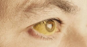 От чего желтеют глаза