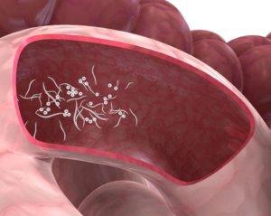Понос с кровью у взрослого: причины