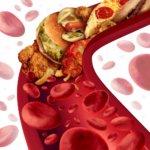 Какие препараты и в каком случае необходимо принимать для снижения холестерина в крови