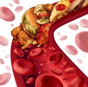 Препараты, снижающие холестерин