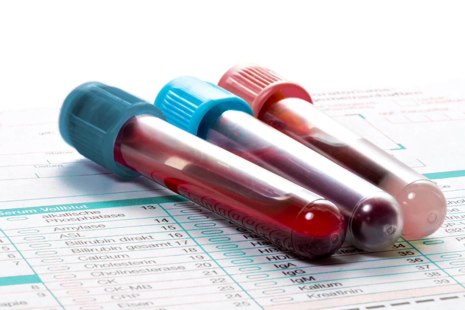 Диастаза крови: значение ее для диагностики болезней