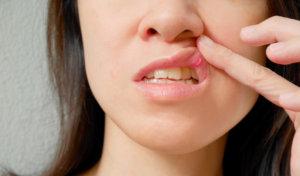 Лечение молочницы во рту