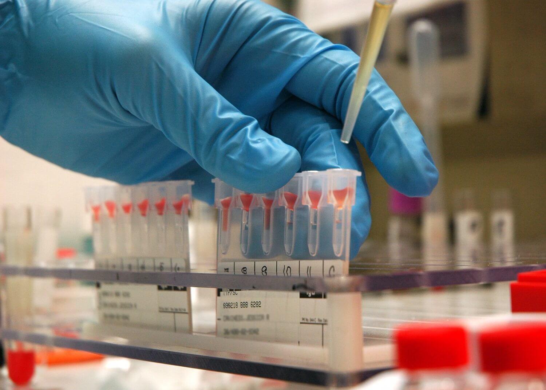 анализы на сифилис количественные