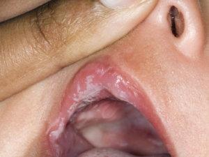 Кандидоз на губах