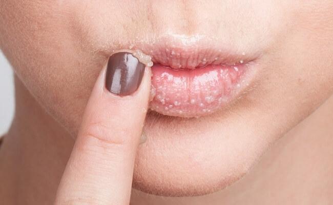 Молочница на губах как лечить причины возникновения