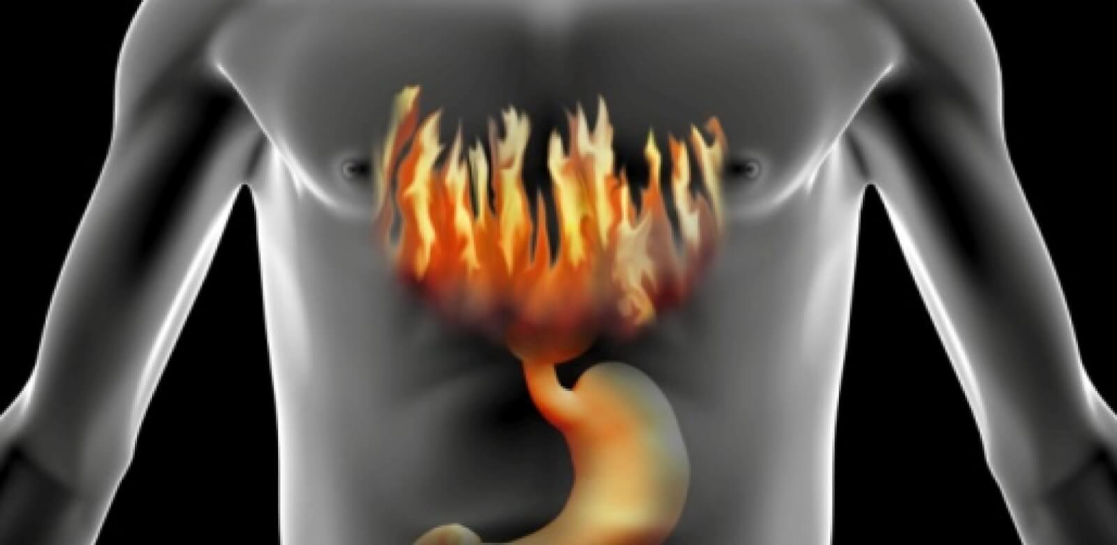 Изжога у человека