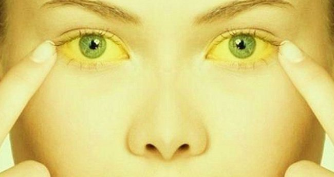 Женщина с желтухой