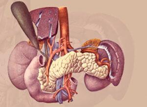 Суть операции при раке поджелудочной железы частичное или полном удалении органа