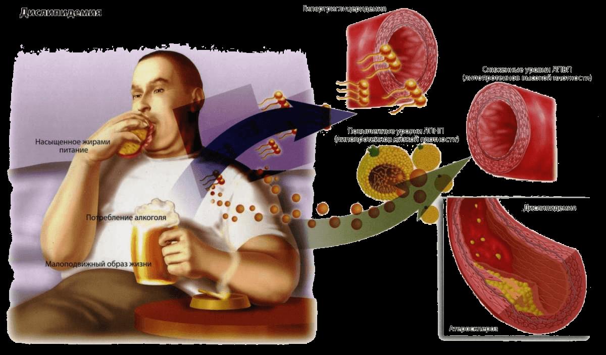 Чем опасен высокий холестерин