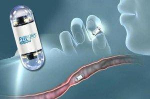 Метод капсульной эндоскопии