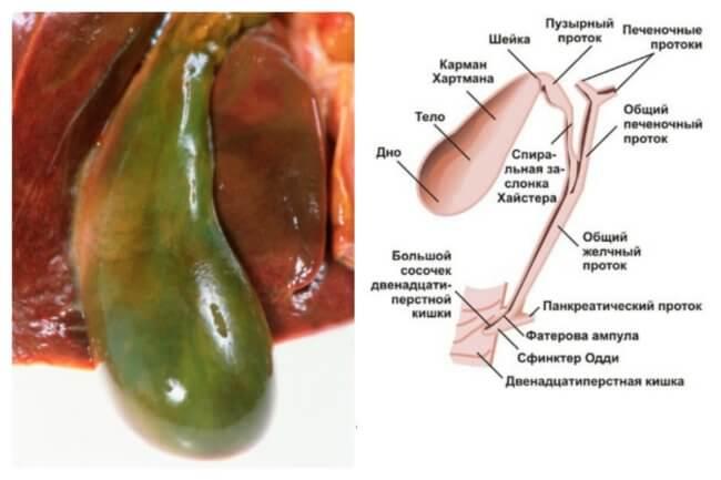 Анатомия желчного пузыря