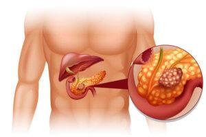 Аденокарцинома поджелудочной железы — прогноз при опухоли и методы ее устранения