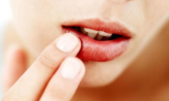 Рак губы