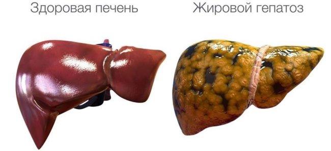 Гепатоз