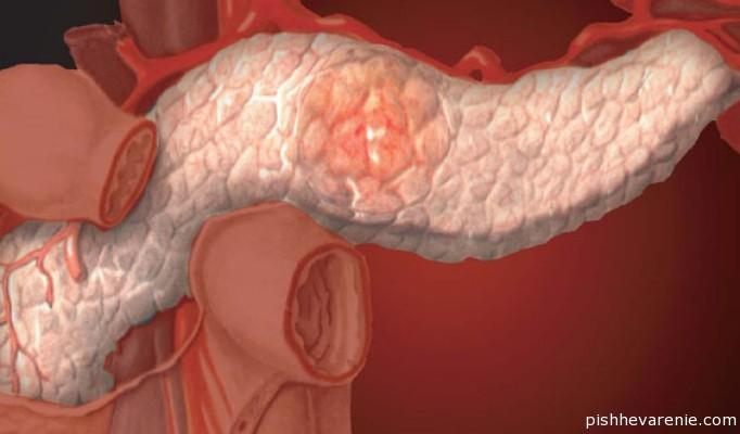 Липоматоз поджелудочной железы: симптоматика и лечебные меры