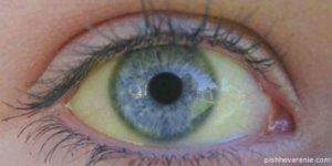 Один из симптомов - желтушность склер