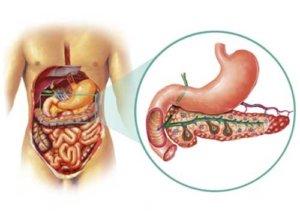 Боль в эпигастрии - один из симптомов поджелудочной