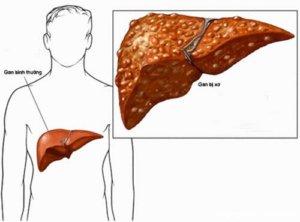 Метастазы в печень свидетельствуют о прогрессировании онкозаболевания