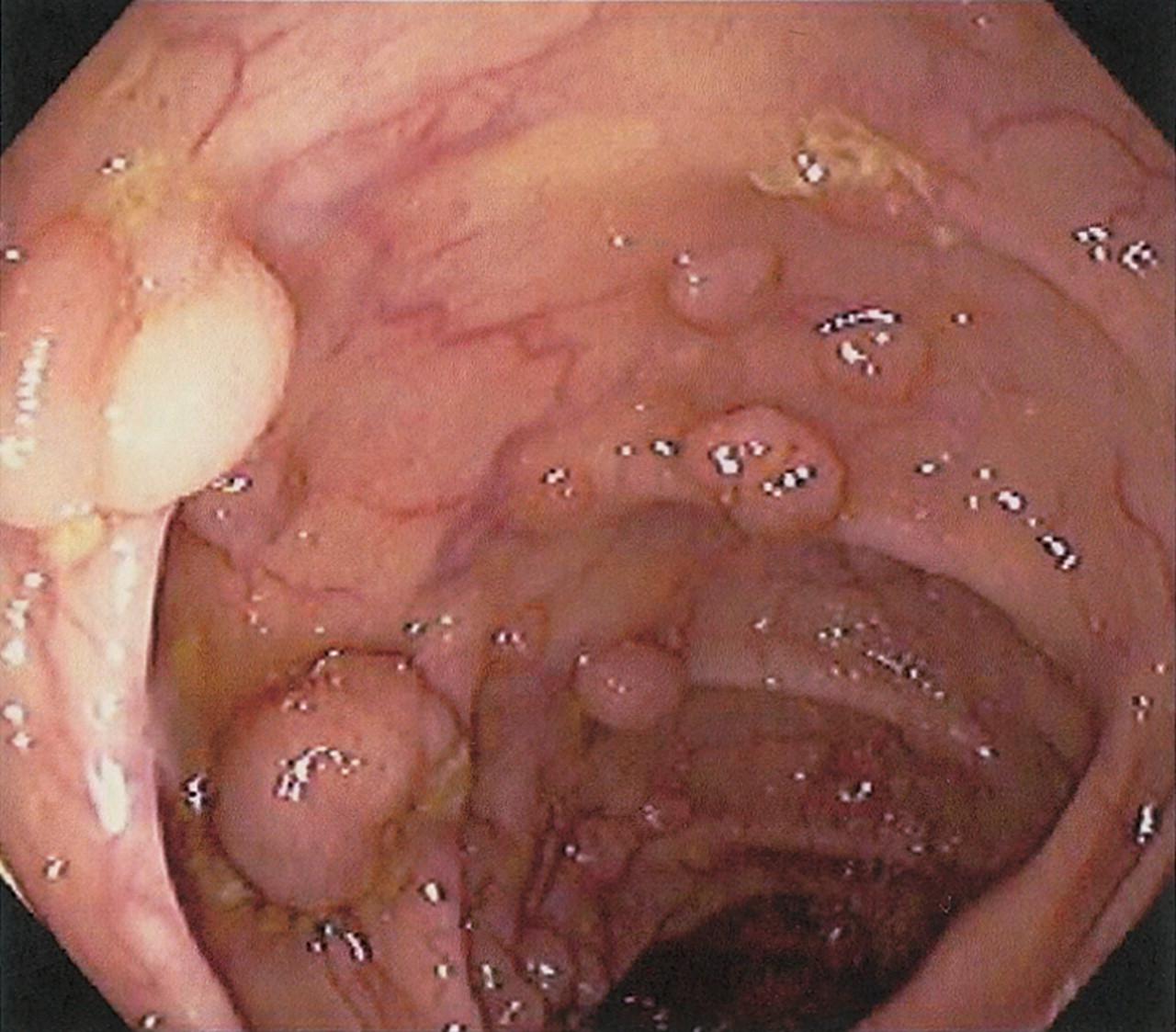 Полипы в прямой кишке: лечение заболевания разными методами