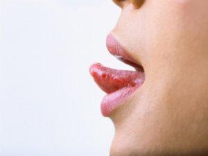 Симптомы рака языка ни с чем не спутать!