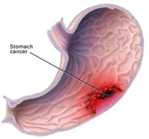 Лейомиома может переродиться в злокачественную опухоль