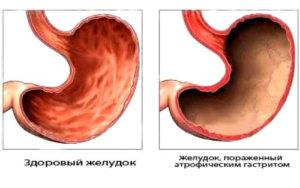 Желудок: здоровый и больной