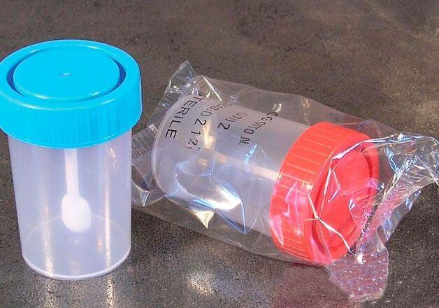 Полная расшифровка анализа на дисбактериоз у детей