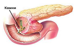Диагностика и лечение камня в поджелудочной железе