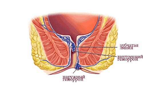 Геморрой во время беременности: лечение и профилактика