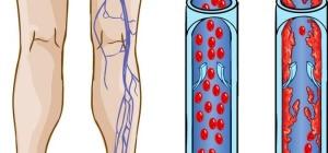 В последствиях от геморроя может возникнуть тромбоз вен.
