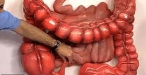 Что делать при хронической диарее
