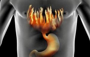 Неприятные ощущения при изжоге