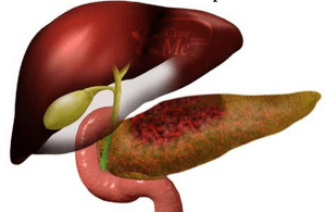 Острому панкреатиту подвержены тучные люди