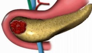 Панкреатит - воспаление поджелудочной железы