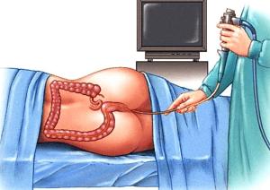 Ректороманоскопия - обследование прямой кишки