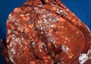Стеатоз - жировая болезнь печени