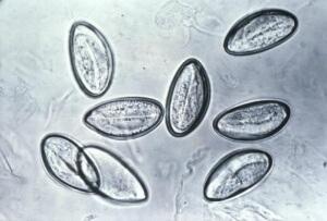 Как выглядят яйца глистов