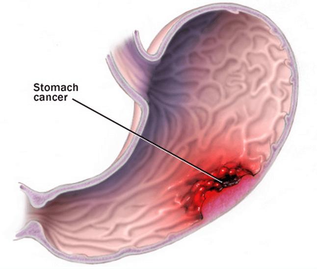 Каллезная язва: симптомы, причины и диета - как лечение заболевания