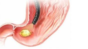 Симптомы перфорации кишечника