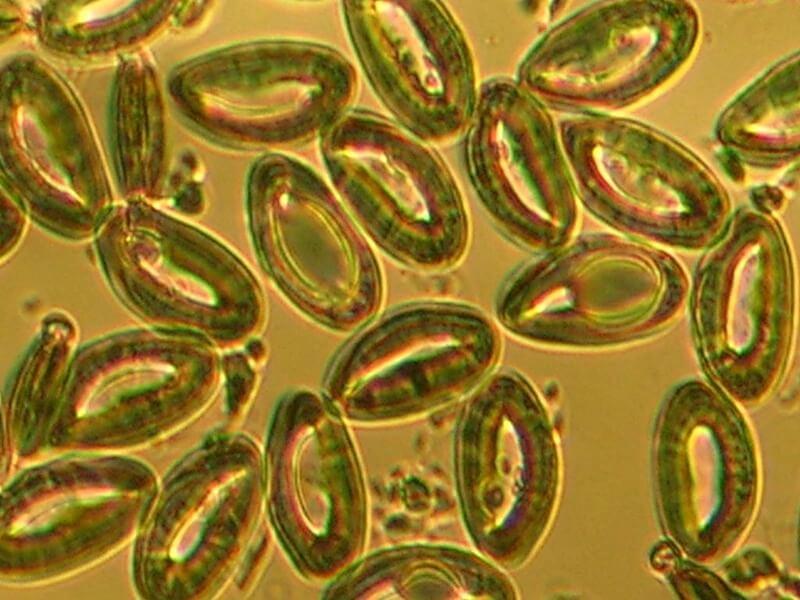 Как выглядят яйца глистов: внешний вид, пути и симптомы заражения