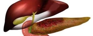 Липоматоз поджелудочной железы